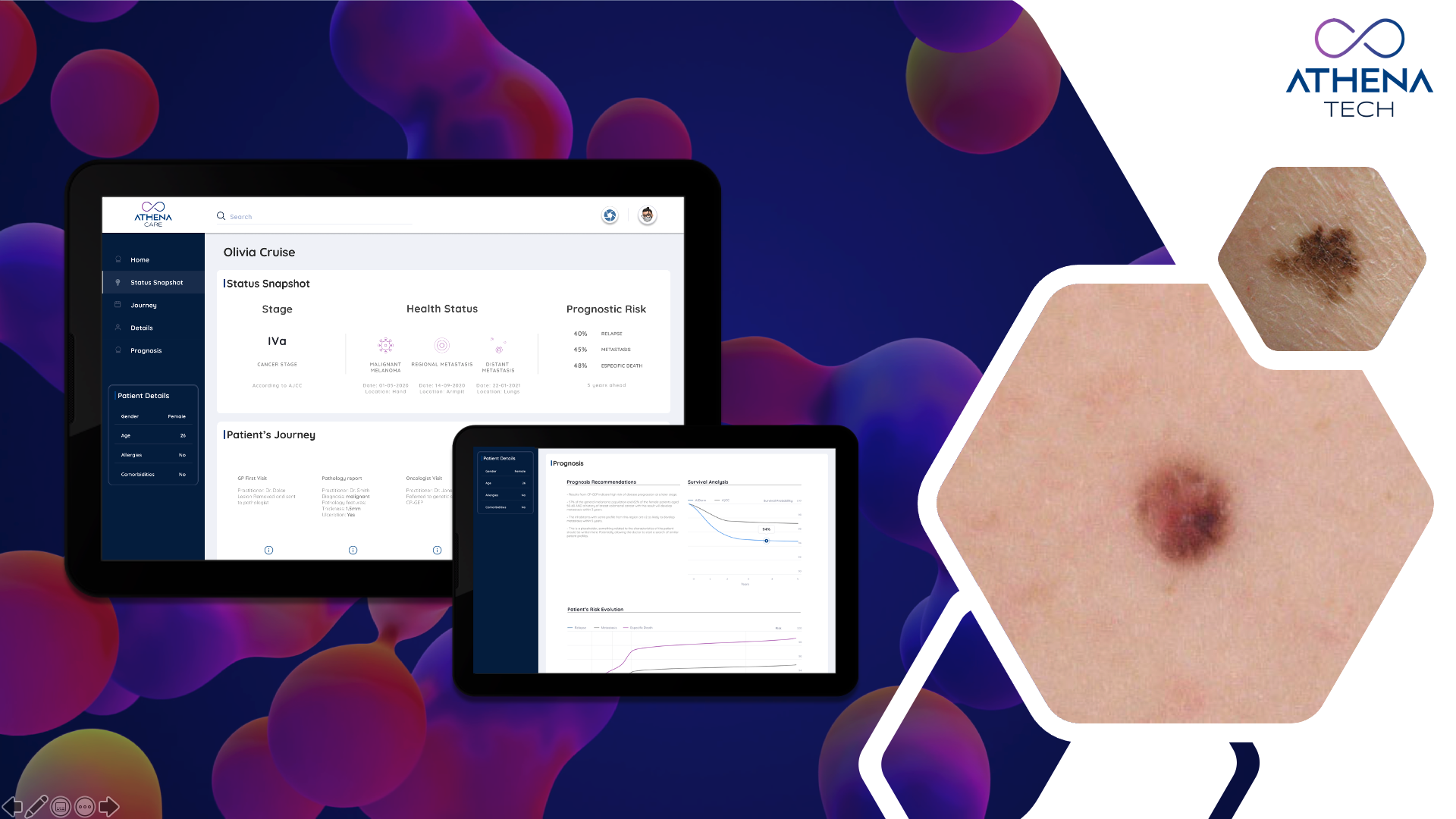 Athena Care in the Digital Garden: from a research prototype to an AI Cognitive Tool for Precision Medicine and Advanced Analytics